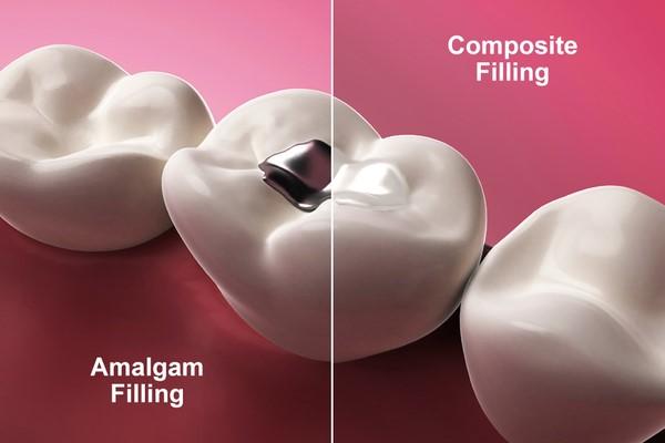 Cách điều trị sâu răng như thế nào?